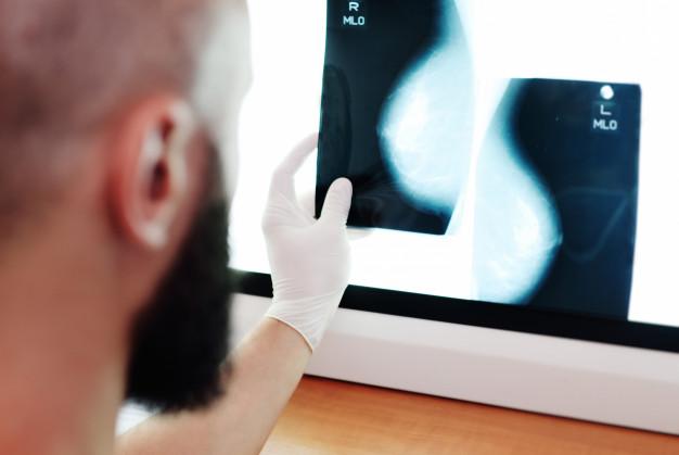 mamografia - Outubro Rosa: Como prevenir e de que forma se engajar?
